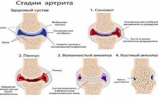 Боль в ступнях ног: причины и методы лечения