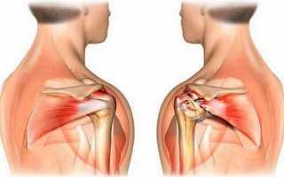 Артроз акс плечевого сустава