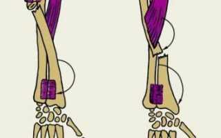 Вывих кисти руки: причины, диагностика, лечение