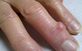 Что делать, если появилась шишка на пальце: причины появления и тактика лечения