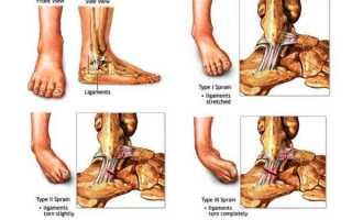 Что делать при растяжении связок ног