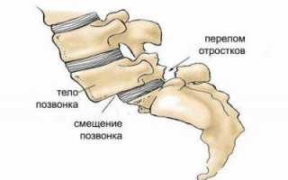 Спондилолистез шейного отдела позвоночника