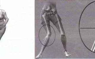 Отек после эндопротезирования коленного сустава