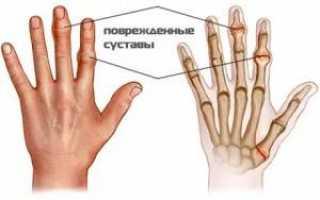 Воспаление сухожилий кисти руки