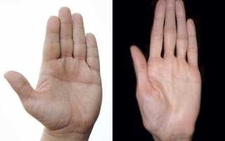 Как выпрямить пальцы на руках в домашних условиях