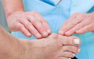 Немеет большой палец на ноге: причины, сопутствующие симптомы, лечение