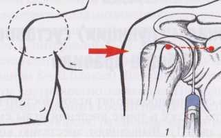 Точки для пункции плечевого сустава