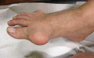Гигрома кисти руки: фото, методы лечения, отзывы