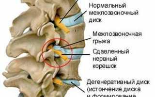 Синдром цервикобрахиалгии