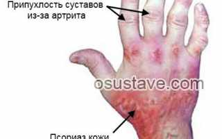 Почему болят после сна суставы пальцев рук