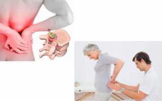 О симптомах и лечении протрузии и межпозвоночной грыжи