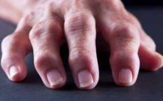 Чем эффективно лечить артрит кистей рук?
