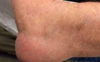 Причины и лечение опухоли на локтевом суставе