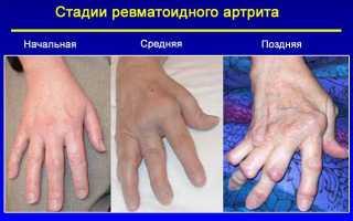 Рентген описание кистей при ревматоидном артрите