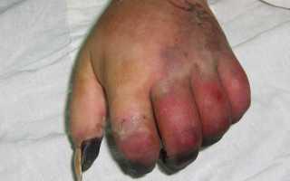 Перелом ладьевидной кости кисти, причины повреждения, симптомы и методы лечения