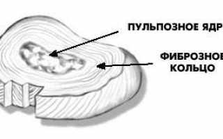 Что такое дуга позвоночника