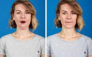 Подтяжка шеи: хорошая возможность вернуть молодость (в любом возрасте)
