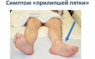 Симптом прилипшей пятки при переломах позвоночника