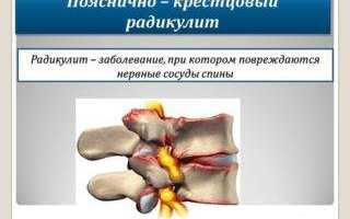 Ушиб крестцового отдела позвоночника при падении лечение