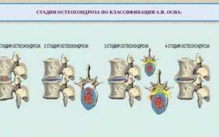 Что делать при обострении остеохондроза: симптомы и лечение