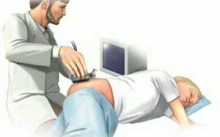 Основные методы лечения остеохондроза тазобедренного сустава