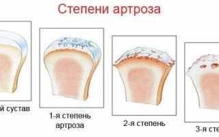 Артроз суставов: причины, симптомы, методы лечения