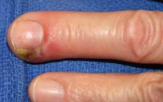 Подногтевой панариций: лечение воспаления