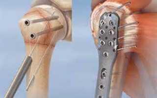 Как разработать руку после перелома плечевой кости?