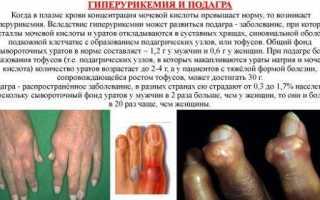 Шишка на сгибе пальца с внутренней стороны
