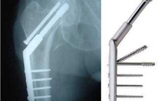 Остеосинтез при переломе бедренной кости