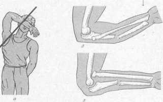 Средства для иммобилизации при переломе позвоночника