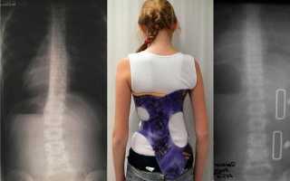 S-образный сколиоз: лечение 1, 2, 3 и 4 степени в грудопоясничном отделе