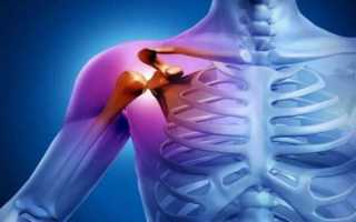 тендинит вращательной манжеты плечевого сустава