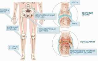 Суставная щель сужена плечевого сустава