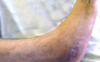 Остеомиелит пяточного бугра (остеомиелит бугра пяточной кости)