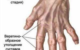 Наросты на суставах пальцев ног фото