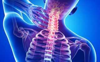 Как вытянуть шею? комплекс упражнений для красивой шеи