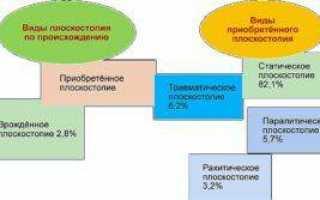 Плоскостопие: симптомы и лечение
