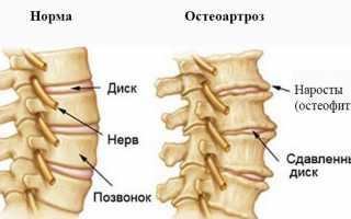 Связь остеохондроза и артроза