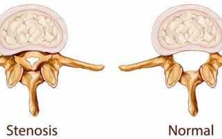 Как лечить стеноз позвоночного канала?