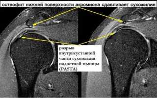 Артроскопия плечевого сустава: показания, операция, реабилитация и инструкция по реабилитации