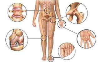 Чем лечить боль в суставах в домашних условиях?