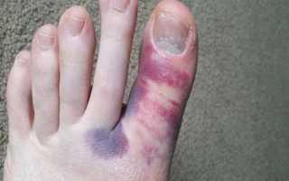 Ушиб пальца на ноге: отличительные признаки и меры первой помощи