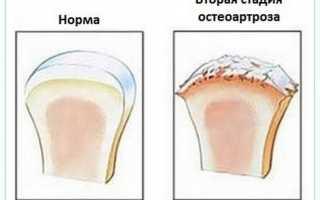 Остеоартроз: симптомы и лечение деформирующего артроза