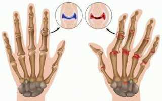 Щелкающий палец (синдром щелкающего пальца; стенозирующий тендовагинит; стенозирующий лигаментит; защелкивающийся, пружинящий, рессорный палец; болезнь нотта; узловатый тендинит)