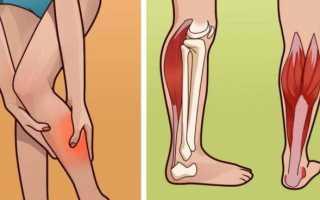 Мышечный спазм в икроножной мышце