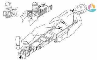 Транспортная иммобилизация. ее виды. показания