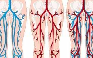 Как снять опухоль после перелома руки и после снятия гипса