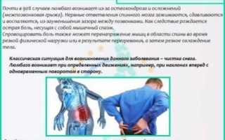 Виды люмбалгии поясничного отдела позвоночника и их лечение