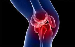 Отёк коленного сустава: лечение в москве